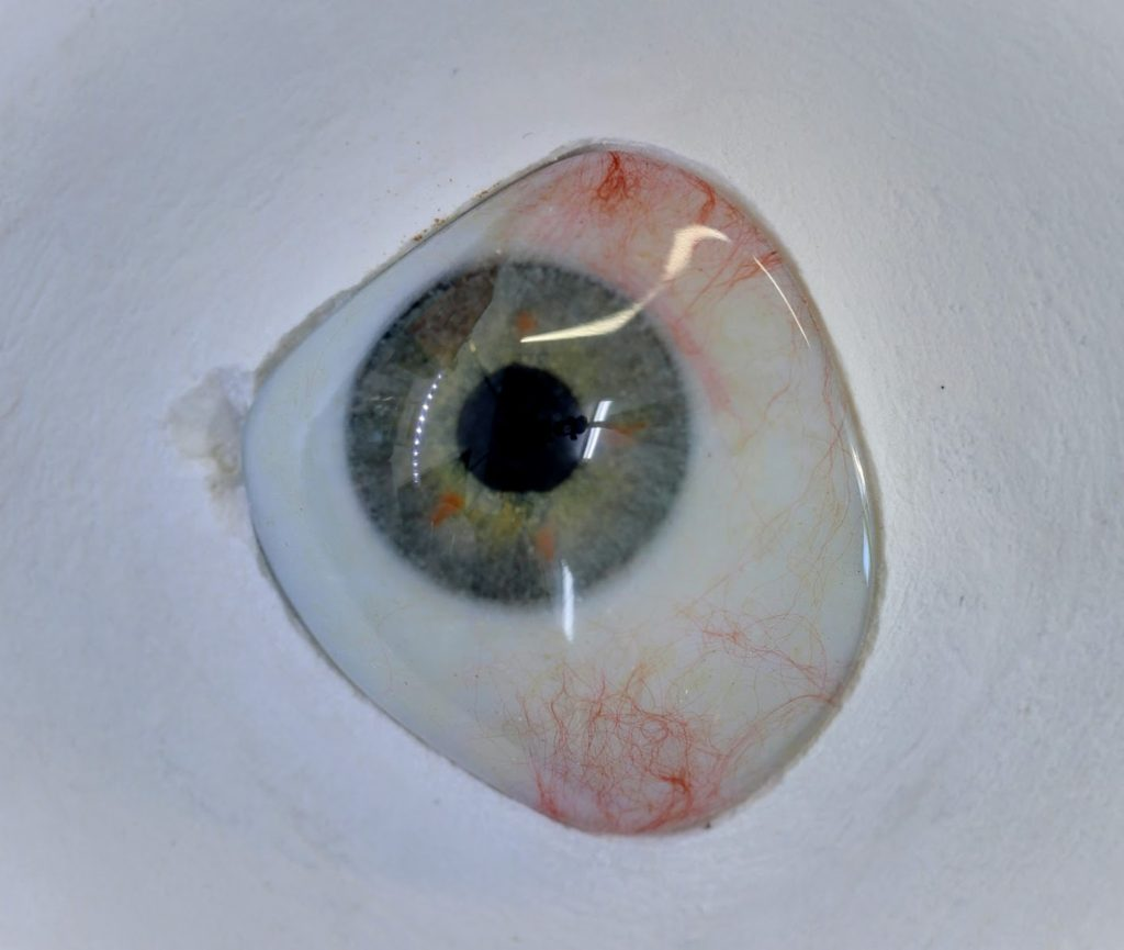 How often does a prosthetic eye need to be replaced