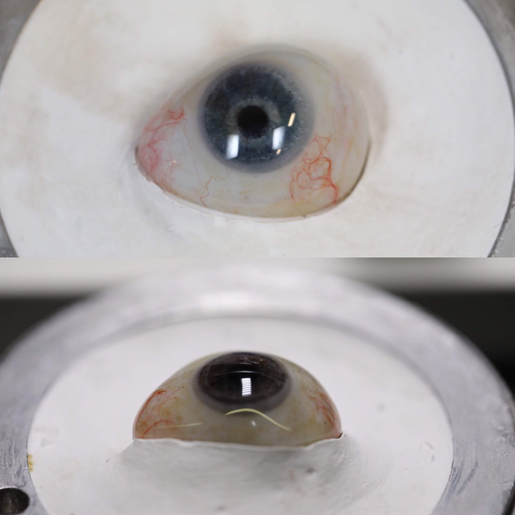 How often does a prosthetic eye need to be replaced?